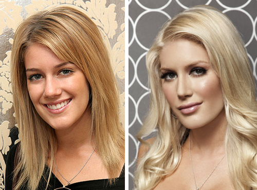 heidi montag before and after plastic surgery