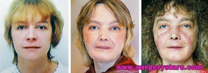 isabelle dinoire plastic surgery