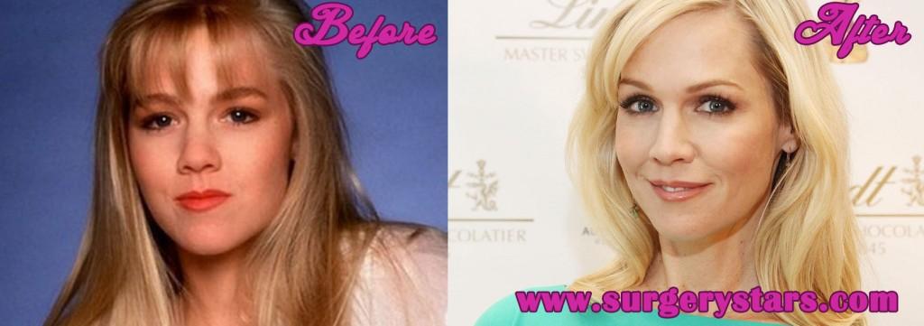 Jennie Garth Plastic Surgery