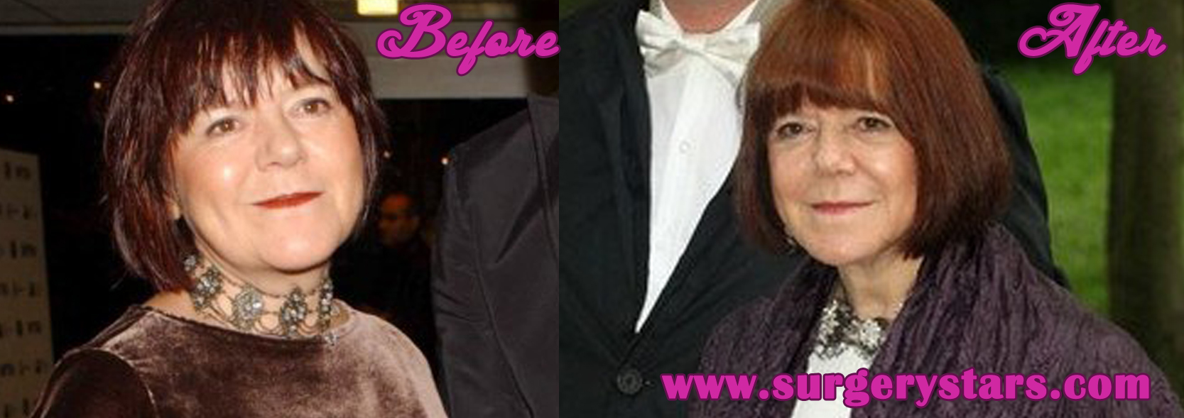rima horton before and after