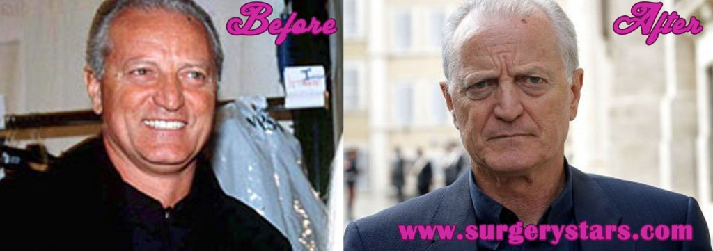 santo versace before and after