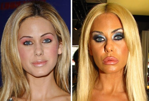 shauna sand before and after plastic surgery