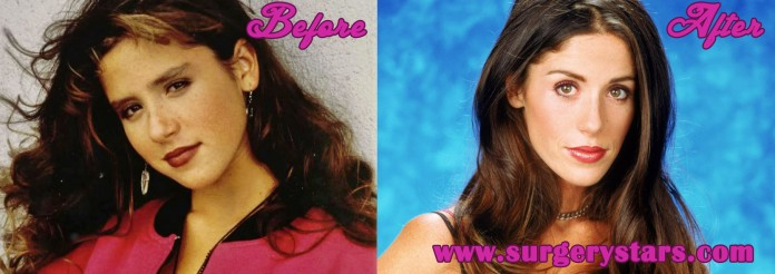soleil moon frye before surgery