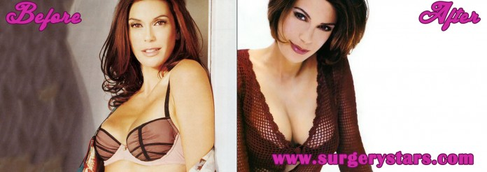 teri hatcher breast implants
