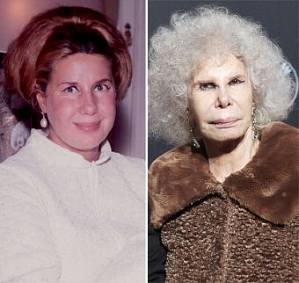 the duchess of alba before and after