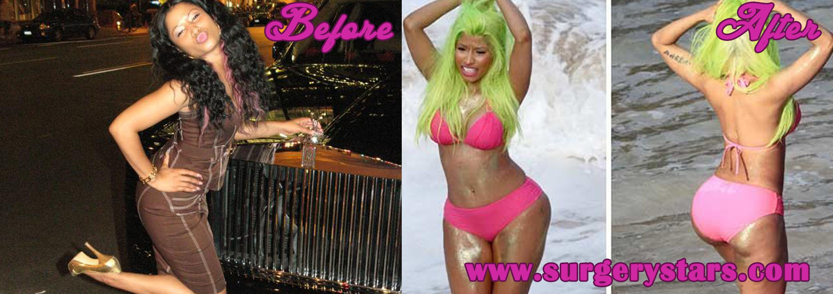 Before And After Butt Implants 6