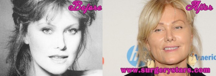 Deborra-Lee Furness before and After Photos