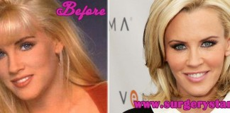 Jenny Mccarthy Plastic Surgery