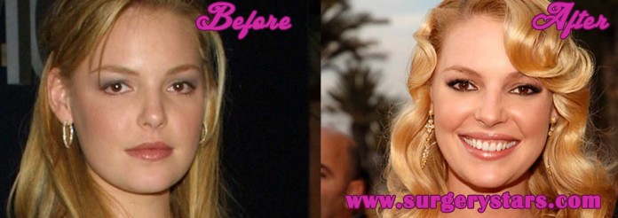 Katherine Heigl Plastic Surgery