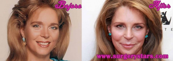 Queen Noor Plastic Surgery