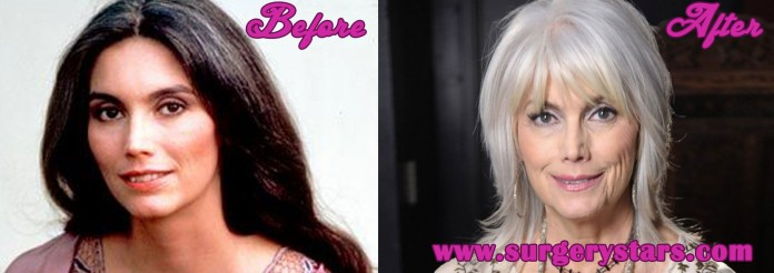 Emmylou Harris Plastic Surgery