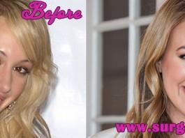 Haylie Duff Plastic Surgery