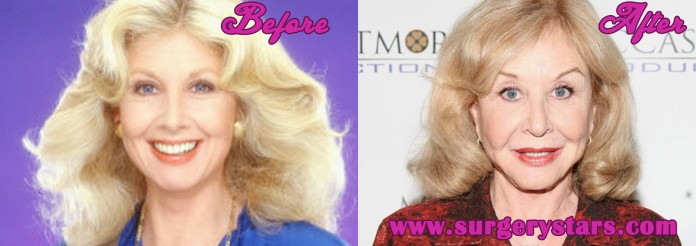 Michael Learned Plastic Surgery