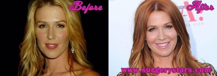 Poppy Montgomery plastic surgery
