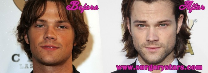 Jared Padalecki Nose Job