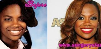 Kandi Burruss Plastic Surgery
