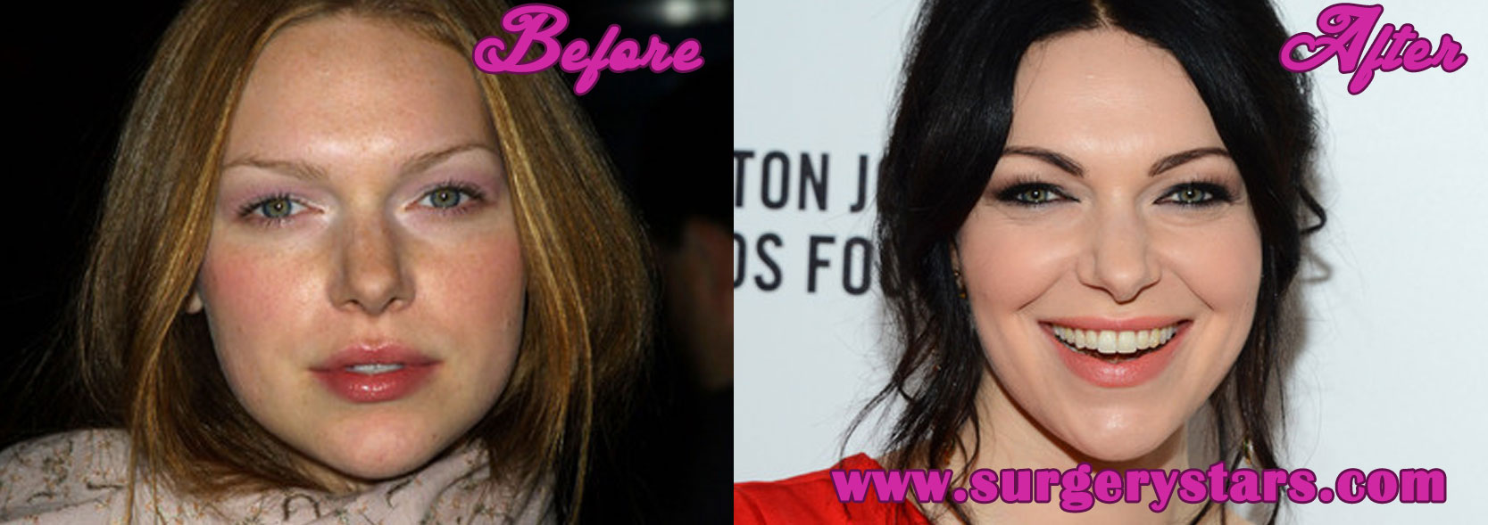 Laura Prepon Plastic Surgery Before and After Pictures