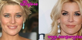 Mckenzie Westmore Plastic Surgery Before and After