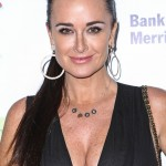 Kyle Richards Botox