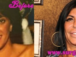big ang plastic surgery