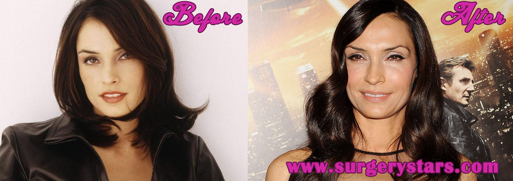 Famke Janssen Plastic Surgery Before and After Pictures