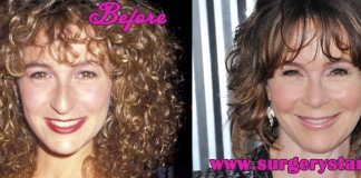 jennifer gray plastic surgery