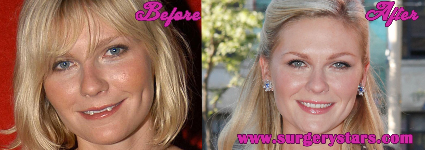 Kirsten Dunst Teeth Before and After Photos
