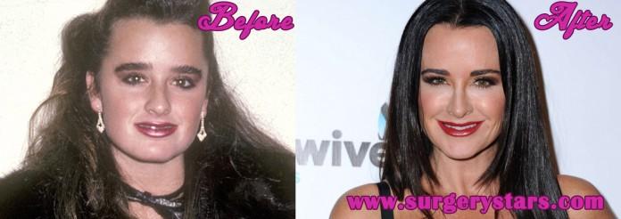 kyle richards plastic surgery