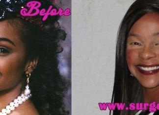lisa turtle plastic surgery