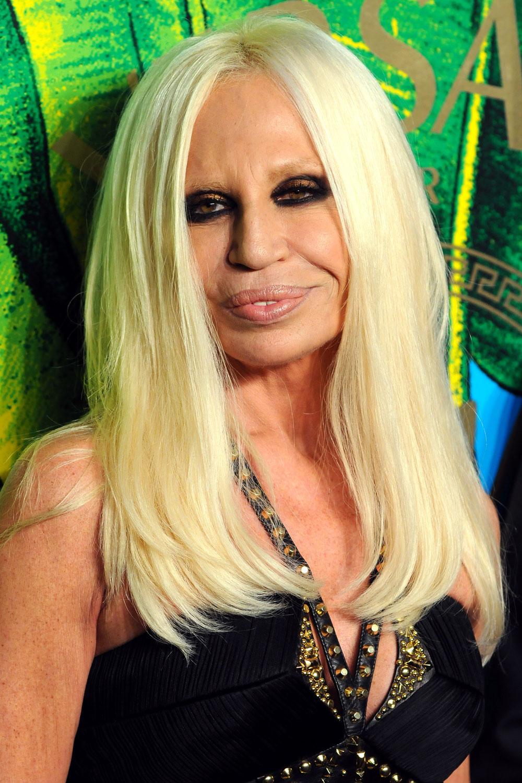 Donatella Versace Lip Job | SurgeryStars
